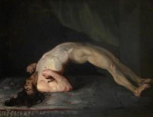 Opisthotonos (1809) Charles Bell (cirujano), tétanos