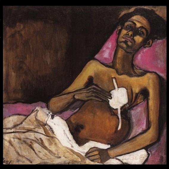Tuberculosis in Harlem (1940), Alice Neel